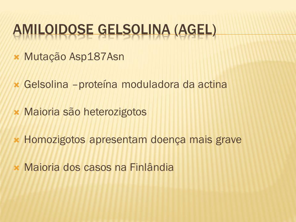 Amiloidose Gelsolina (AGel)