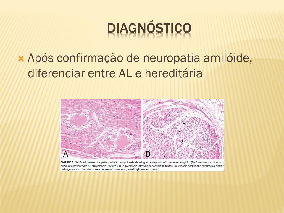 Diagnóstico Após confirmação de neuropatia amilóide, diferenciar entre AL e hereditária