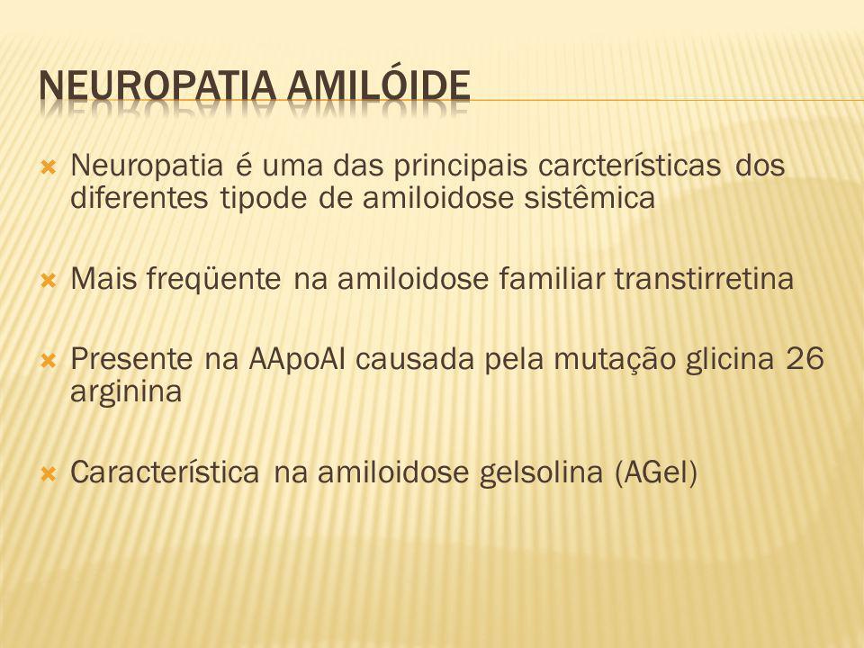 Neuropatia amilóide Neuropatia é uma das principais carcterísticas dos diferentes tipode de amiloidose sistêmica.