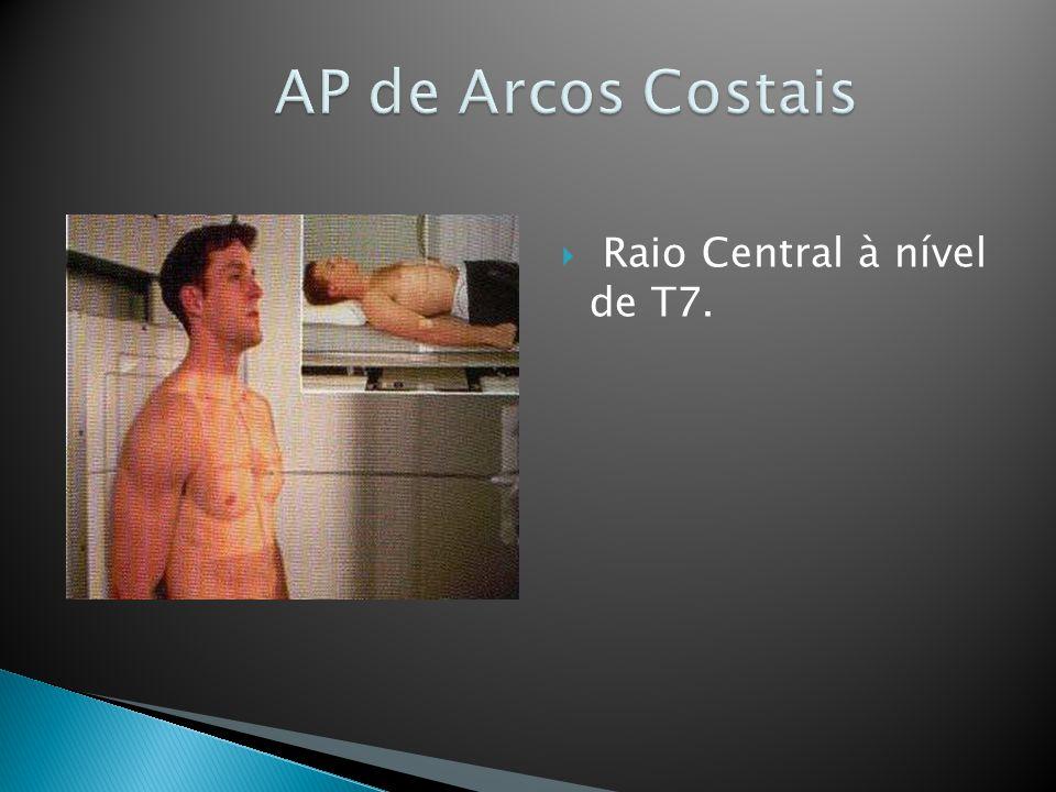 AP de Arcos Costais Raio Central à nível de T7.