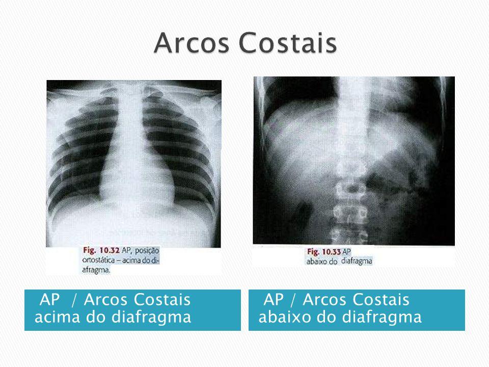 Arcos Costais AP / Arcos Costais acima do diafragma