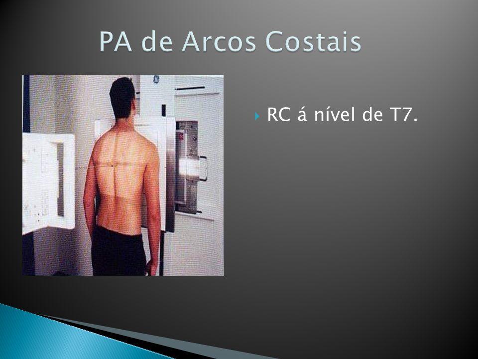 PA de Arcos Costais RC á nível de T7.