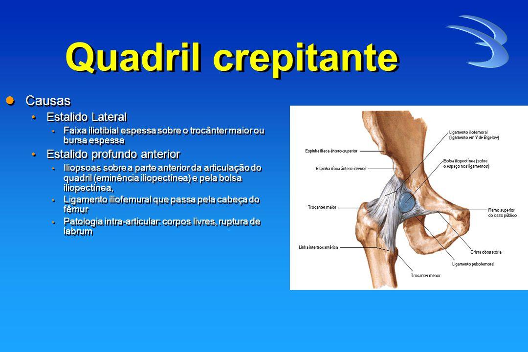 Quadril crepitante Causas Estalido Lateral Estalido profundo anterior