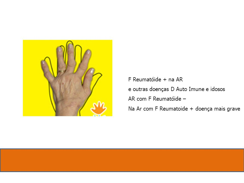 F Reumatóide + na AR. e outras doenças D Auto Imune e idosos.
