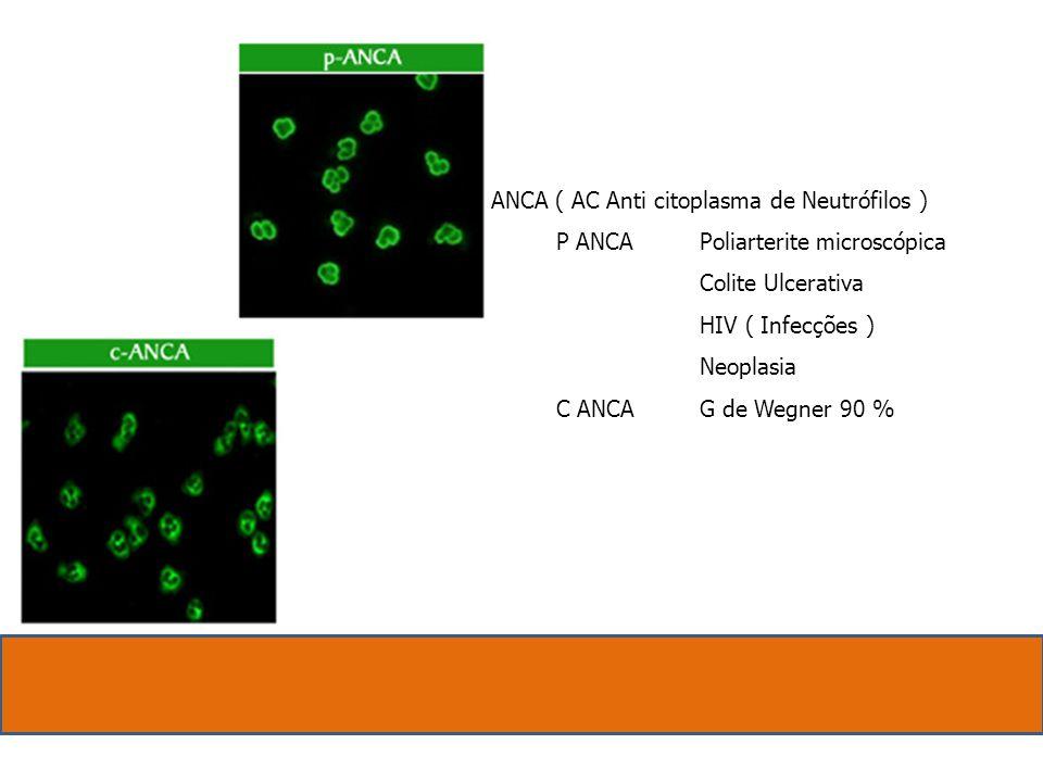 ANCA ( AC Anti citoplasma de Neutrófilos ) P ANCA Poliarterite microscópica. Colite Ulcerativa.