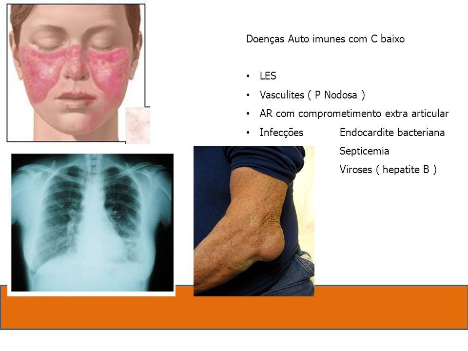 Doenças Auto imunes com C baixo. LES. Vasculites ( P Nodosa ) AR com comprometimento extra articular.