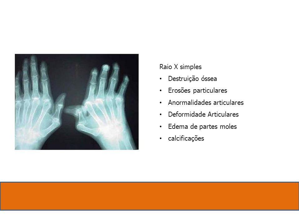 Raio X simples. Destruição óssea. Erosões particulares. Anormalidades articulares. Deformidade Articulares.