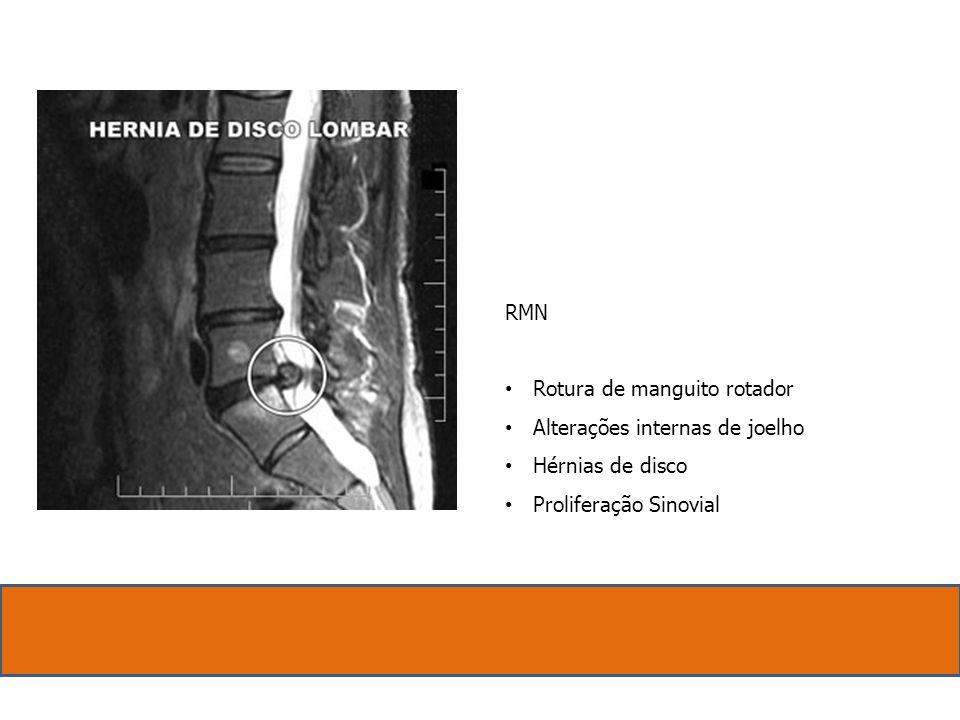 RMN. Rotura de manguito rotador. Alterações internas de joelho.