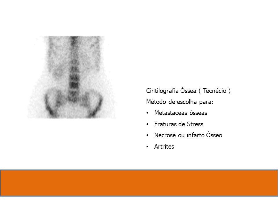 Cintilografia Óssea ( Tecnécio ) Método de escolha para: Metastaceas ósseas. Fraturas de Stress.