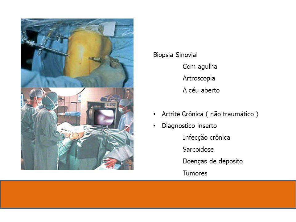 Biopsia Sinovial. Com agulha. Artroscopia. A céu aberto. Artrite Crônica ( não traumático ) Diagnostico inserto.
