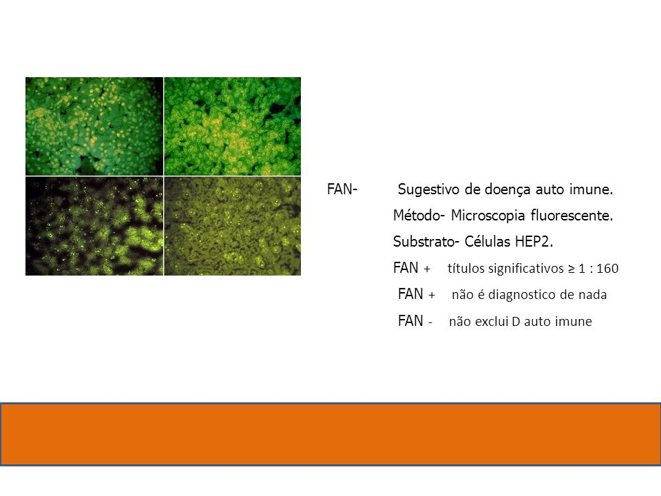 FAN- Sugestivo de doença auto imune. Método- Microscopia fluorescente. Substrato- Células HEP2.