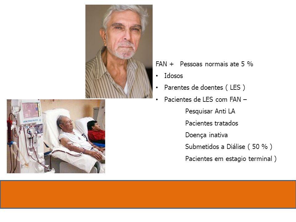 FAN + Pessoas normais ate 5 % Idosos. Parentes de doentes ( LES ) Pacientes de LES com FAN –