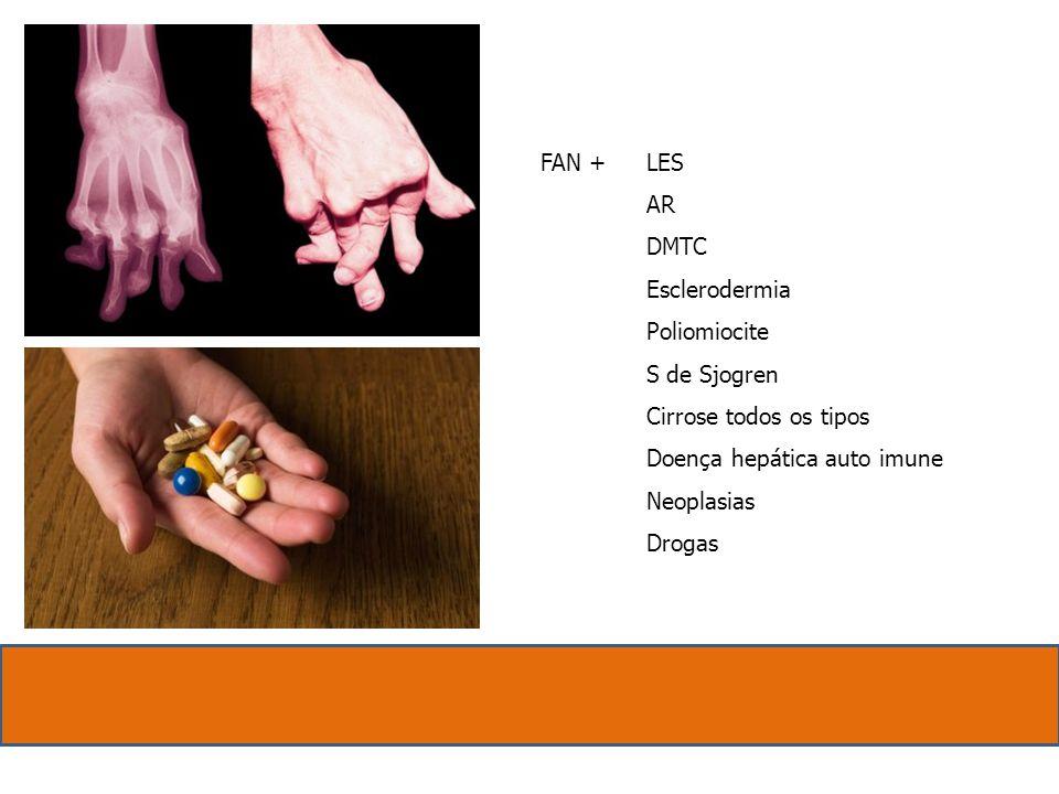FAN + LES. AR. DMTC. Esclerodermia. Poliomiocite. S de Sjogren. Cirrose todos os tipos. Doença hepática auto imune.