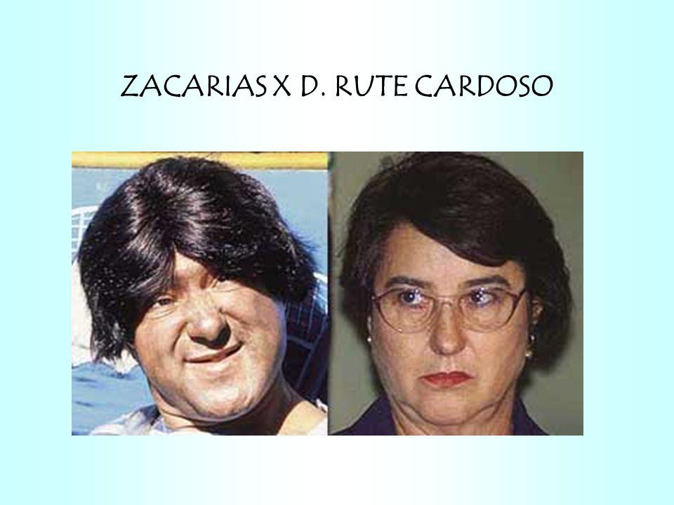 ZACARIAS X D. RUTE CARDOSO