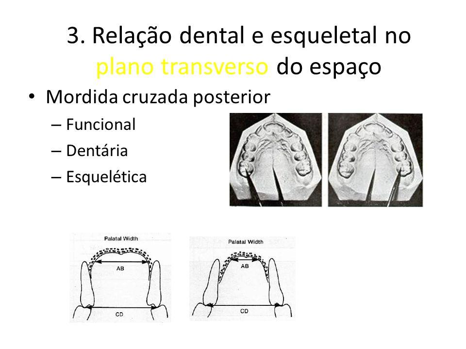 3. Relação dental e esqueletal no plano transverso do espaço