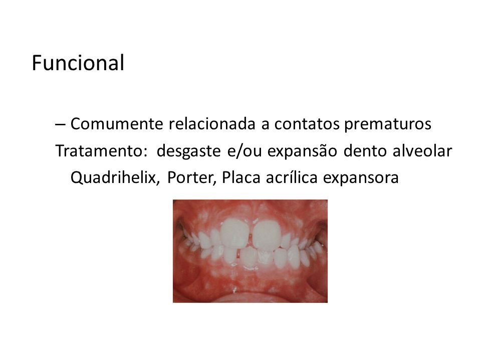 Funcional Comumente relacionada a contatos prematuros