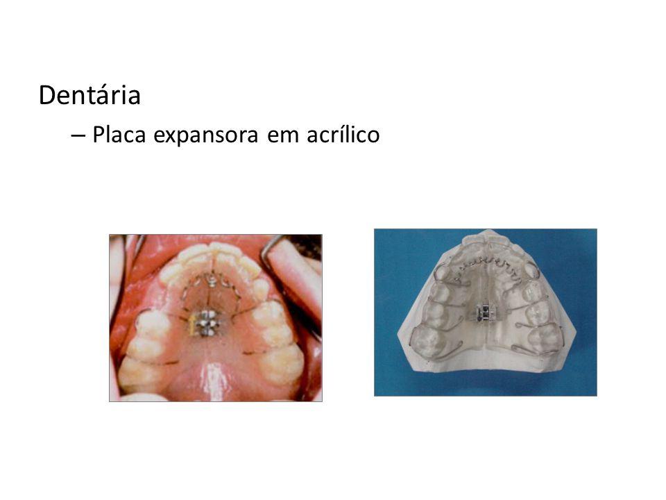 Dentária Placa expansora em acrílico