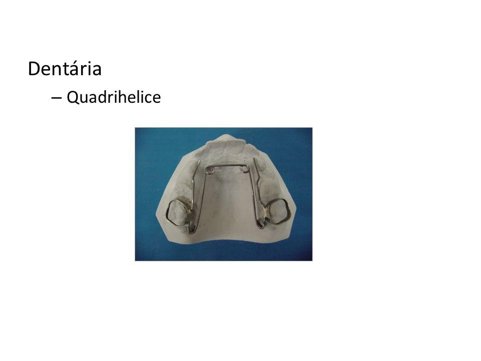 Dentária Quadrihelice