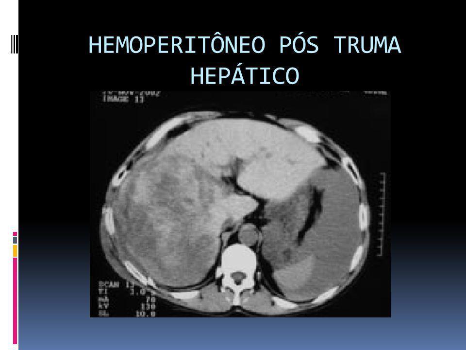 HEMOPERITÔNEO PÓS TRUMA HEPÁTICO