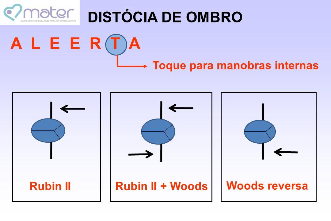 A L E E R T A DISTÓCIA DE OMBRO Toque para manobras internas Rubin II