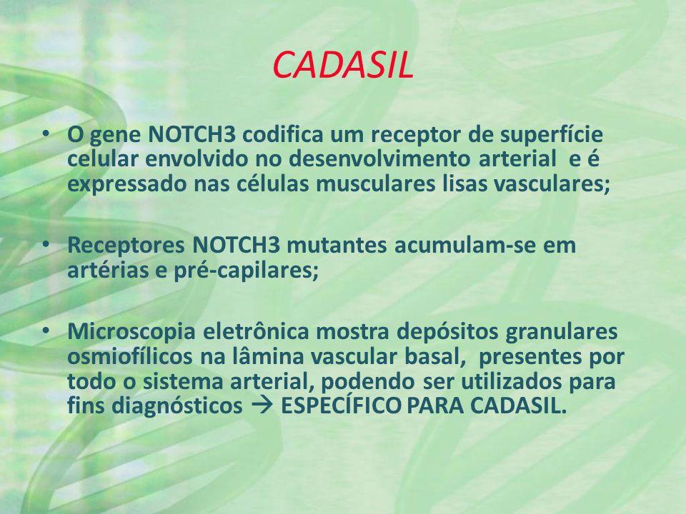 CADASIL