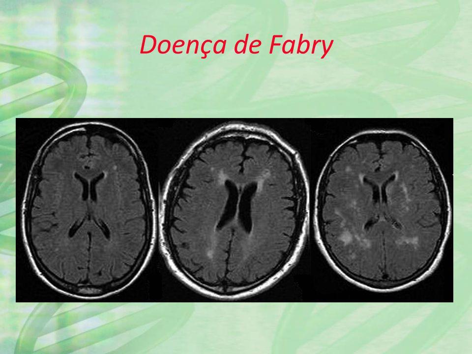 Doença de Fabry