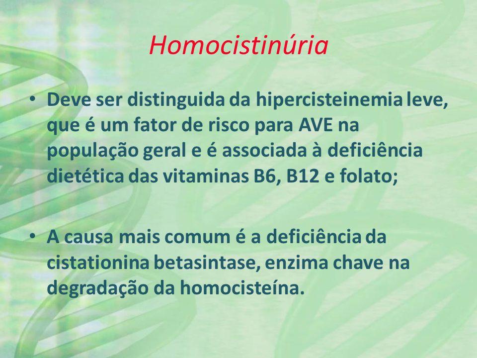 Homocistinúria