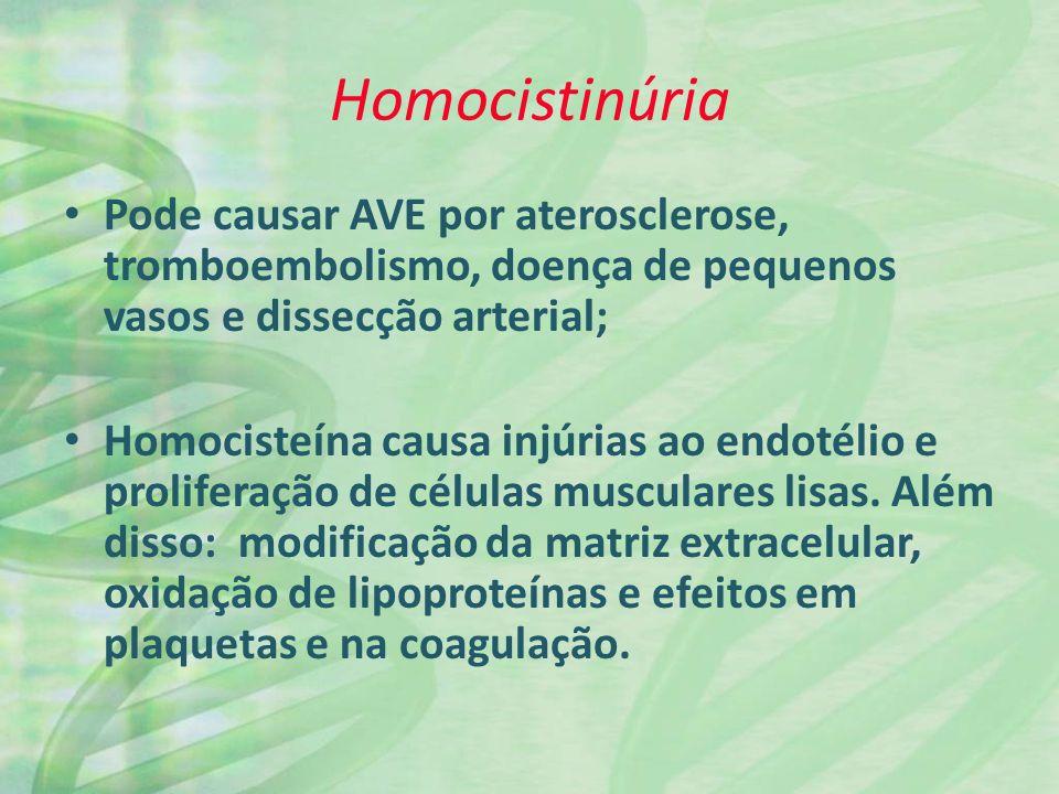 Homocistinúria Pode causar AVE por aterosclerose, tromboembolismo, doença de pequenos vasos e dissecção arterial;