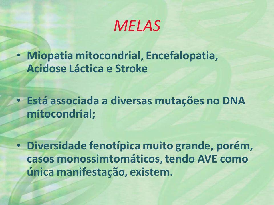MELAS Miopatia mitocondrial, Encefalopatia, Acidose Láctica e Stroke