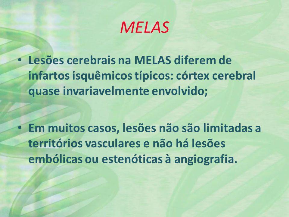 MELAS Lesões cerebrais na MELAS diferem de infartos isquêmicos típicos: córtex cerebral quase invariavelmente envolvido;