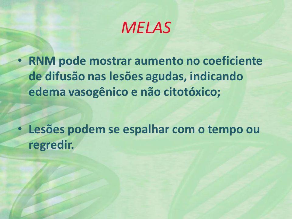 MELAS RNM pode mostrar aumento no coeficiente de difusão nas lesões agudas, indicando edema vasogênico e não citotóxico;