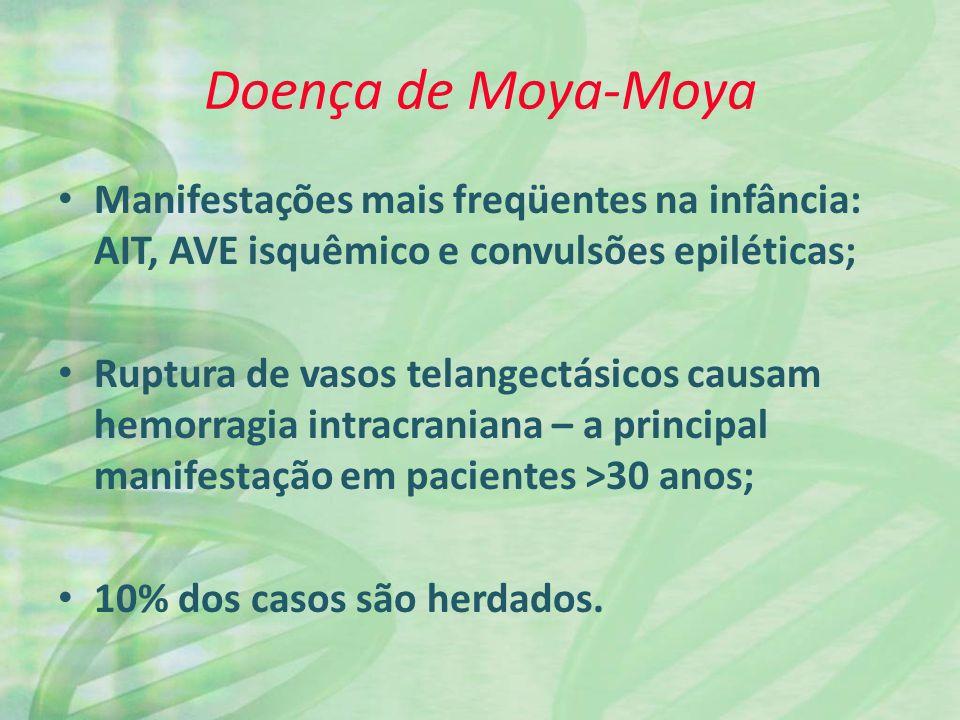 Doença de Moya-Moya Manifestações mais freqüentes na infância: AIT, AVE isquêmico e convulsões epiléticas;