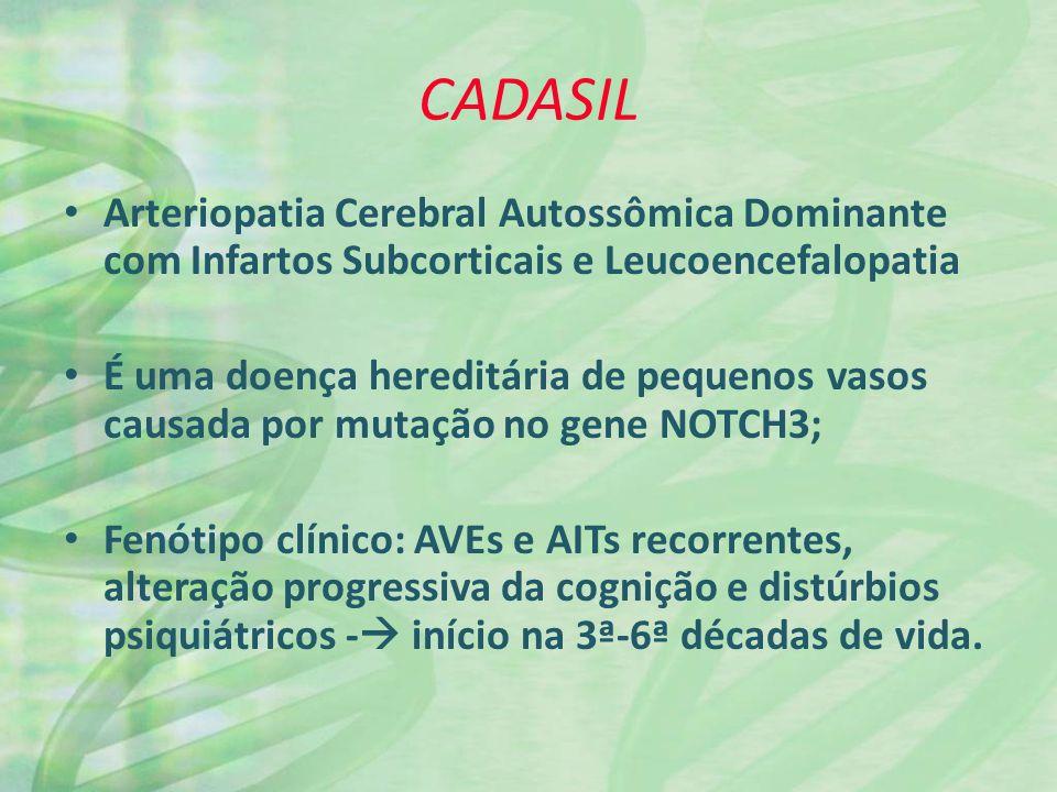CADASIL Arteriopatia Cerebral Autossômica Dominante com Infartos Subcorticais e Leucoencefalopatia.