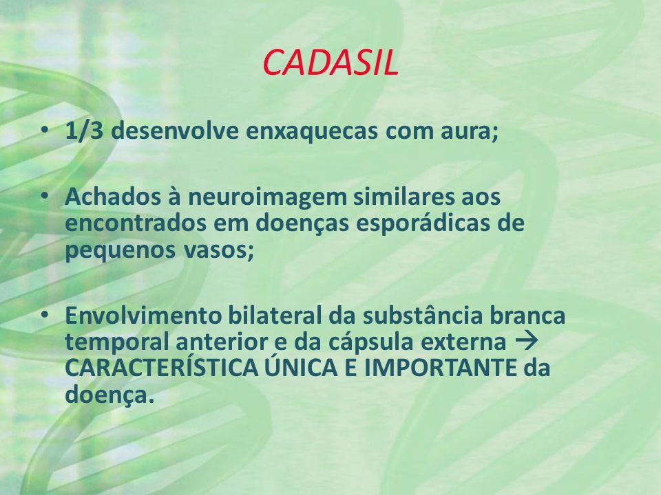 CADASIL 1/3 desenvolve enxaquecas com aura;