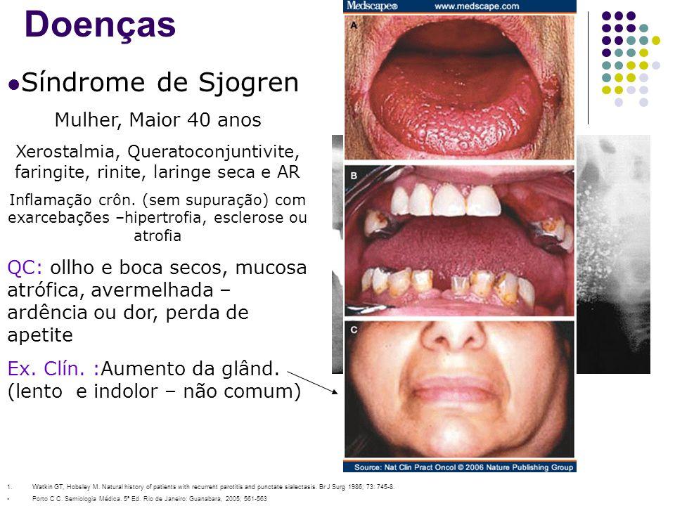 Xerostalmia, Queratoconjuntivite, faringite, rinite, laringe seca e AR