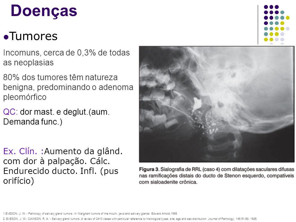 Doenças Tumores Incomuns, cerca de 0,3% de todas as neoplasias