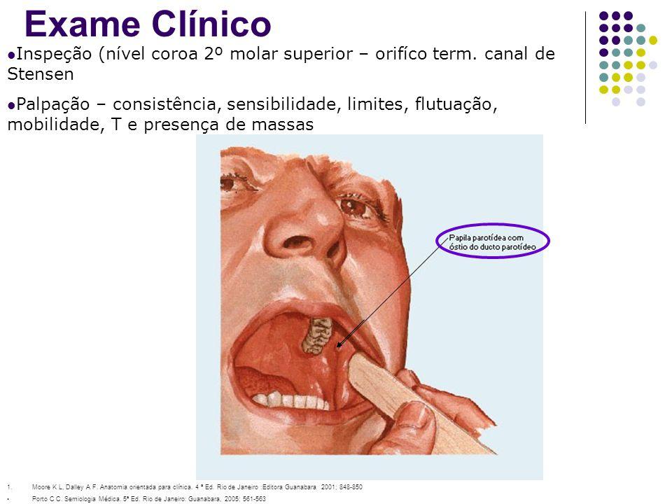 Exame Clínico Inspeção (nível coroa 2º molar superior – orifíco term. canal de Stensen.