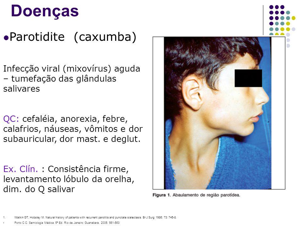 Doenças Parotidite (caxumba)