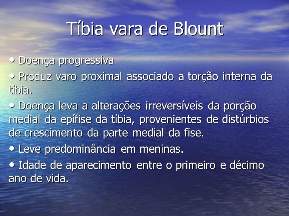 Tíbia vara de Blount Doença progressiva