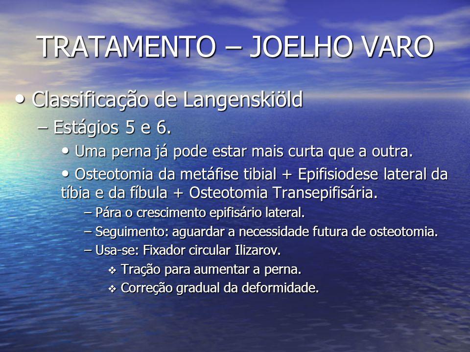 TRATAMENTO – JOELHO VARO