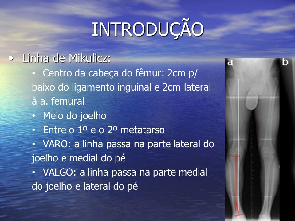 INTRODUÇÃO Linha de Mikulicz: Centro da cabeça do fêmur: 2cm p/
