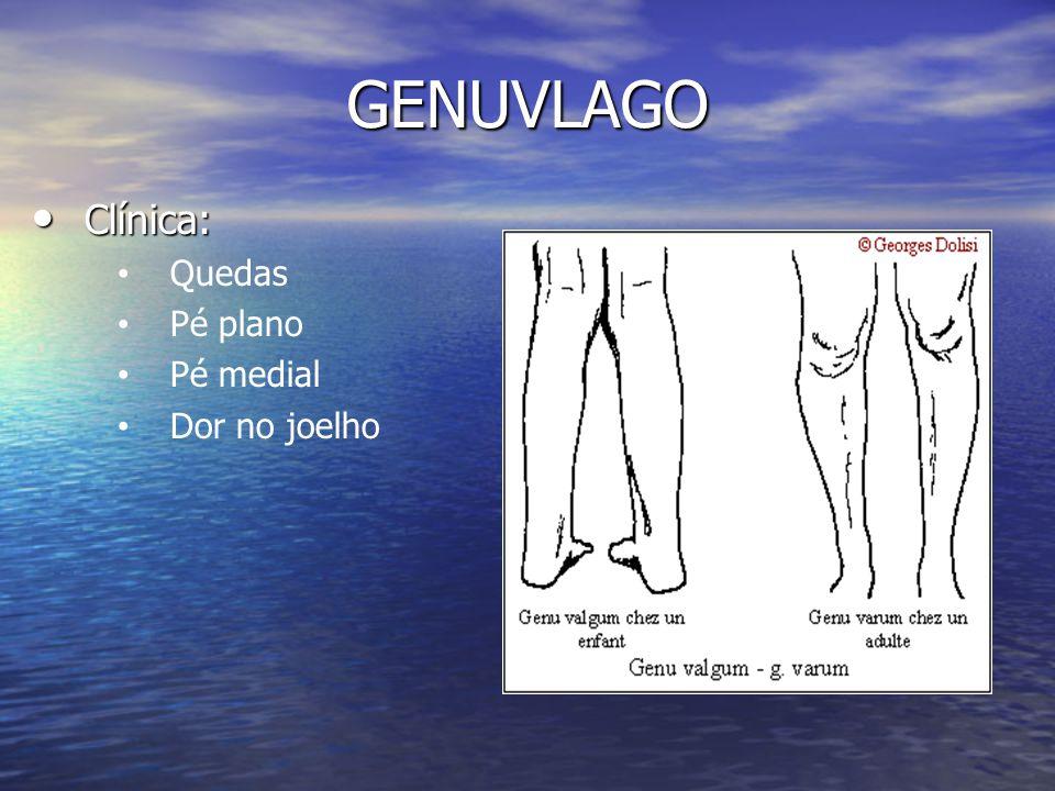Clínica: Quedas Pé plano Pé medial Dor no joelho