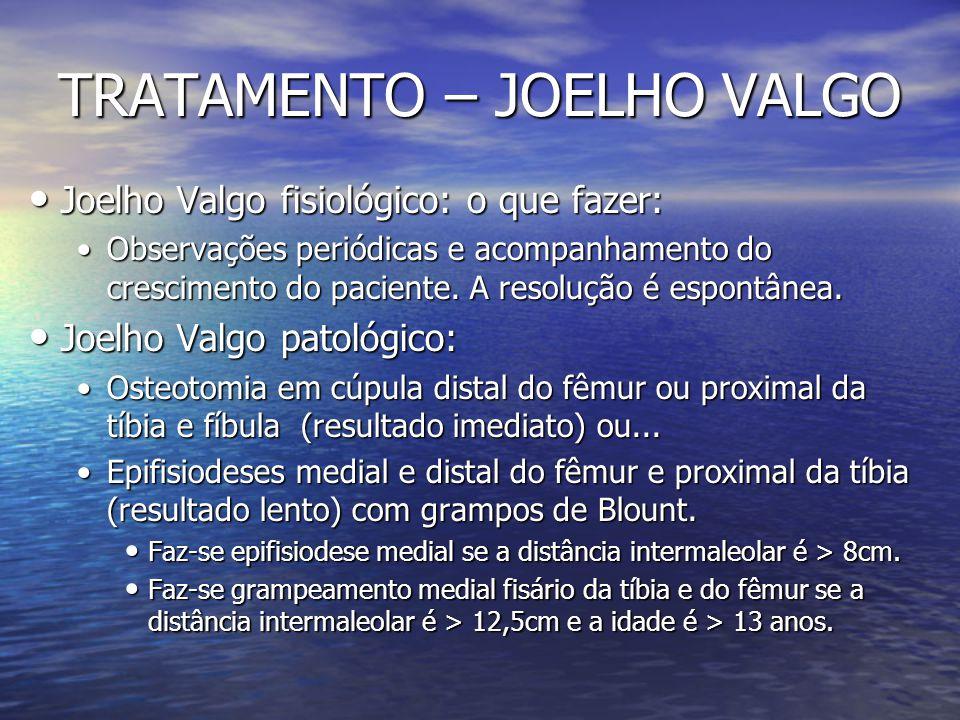 TRATAMENTO – JOELHO VALGO