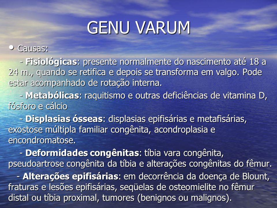 GENU VARUM Causas: