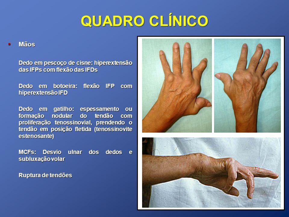 QUADRO CLÍNICO Mãos. Dedo em pescoço de cisne: hiperextensão das IFPs com flexão das IFDs. Dedo em botoeira: flexão IFP com hiperextensão IFD.