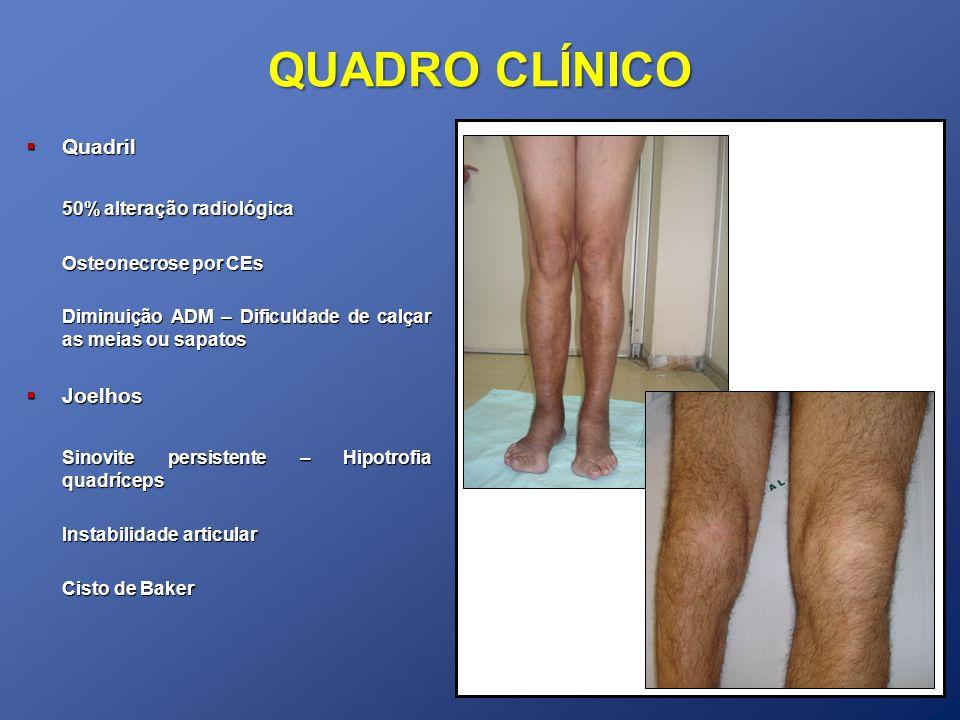 QUADRO CLÍNICO Quadril 50% alteração radiológica Joelhos