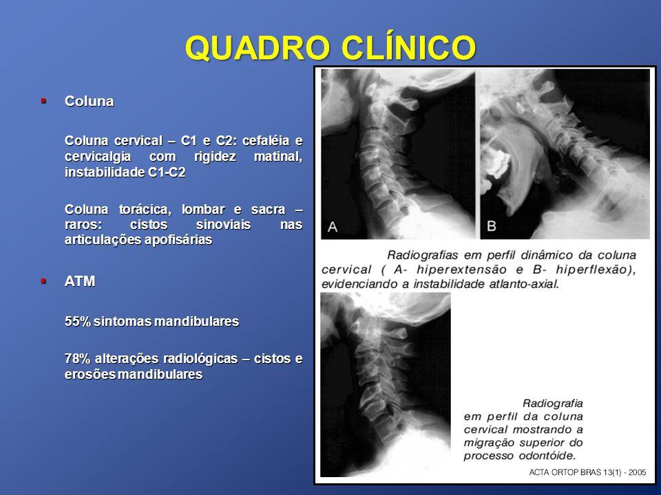 QUADRO CLÍNICO Coluna. Coluna cervical – C1 e C2: cefaléia e cervicalgia com rigidez matinal, instabilidade C1-C2.