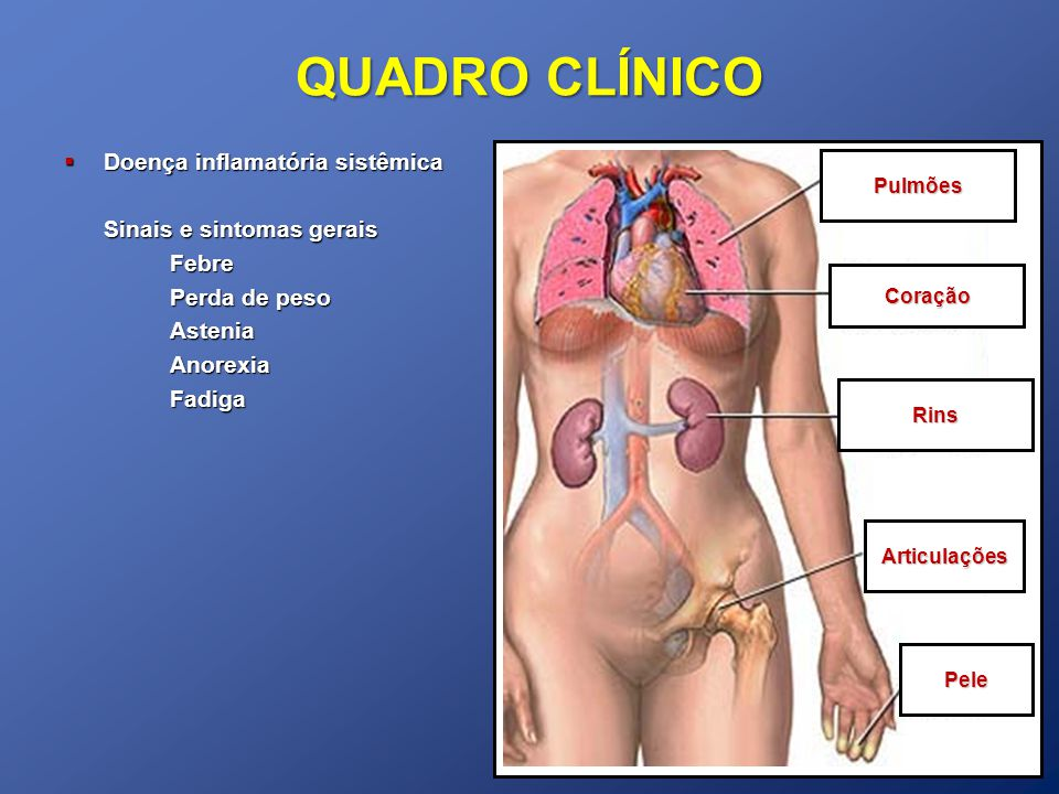 QUADRO CLÍNICO Doença inflamatória sistêmica Sinais e sintomas gerais