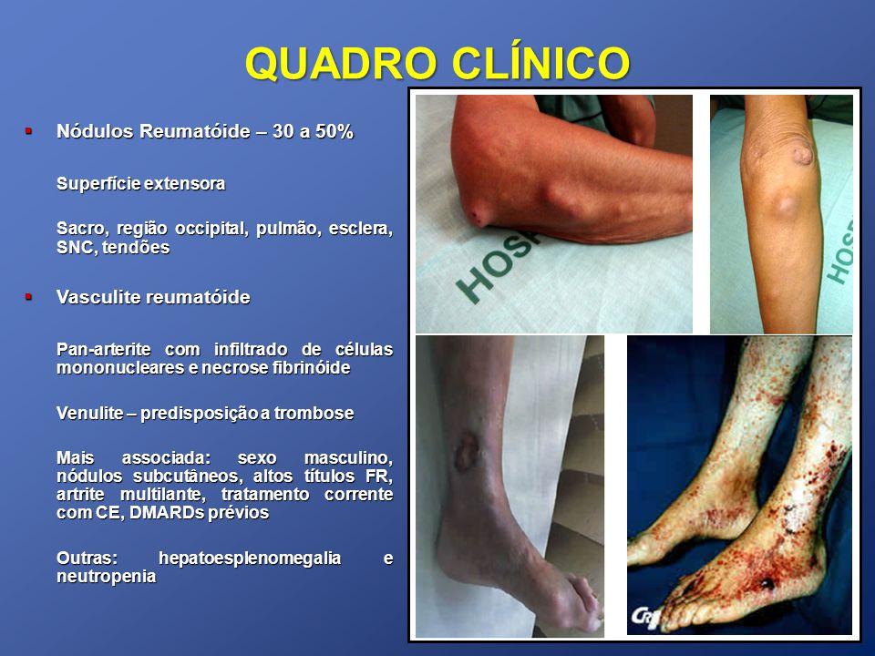 QUADRO CLÍNICO Nódulos Reumatóide – 30 a 50% Superfície extensora
