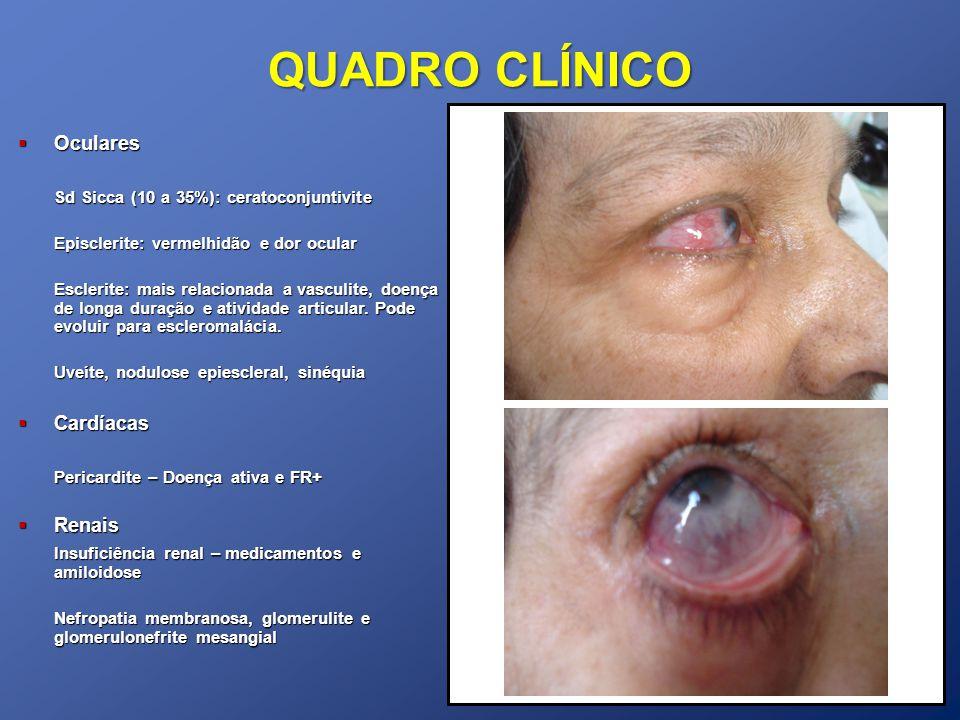 QUADRO CLÍNICO Oculares Sd Sicca (10 a 35%): ceratoconjuntivite